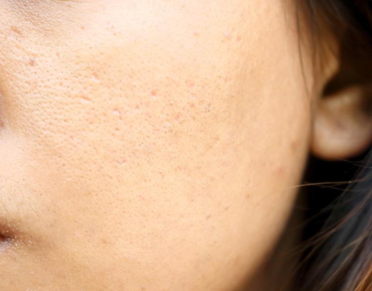 Redução de poros: 3 dicas para oferecer tratamentos   ADCOS Profissional