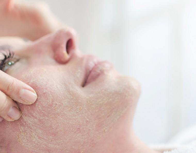 Limpeza de pele pré-peeling: como preparar a pele para melhores resultados | ADCOS Profissional
