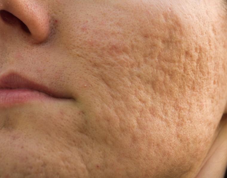 Microagulhamento: o método eficaz para tratar cicatriz de acne | ADCOS Profissional