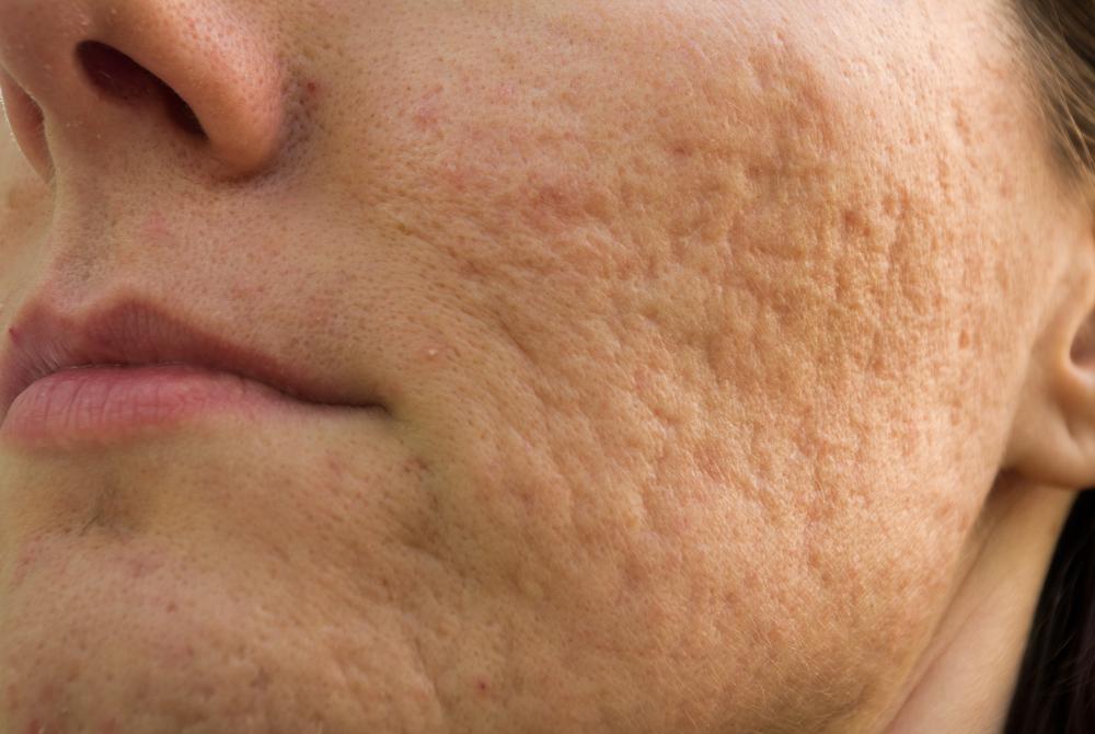 Microagulhamento: o método eficaz para tratar cicatriz de acne   ADCOS Profissional