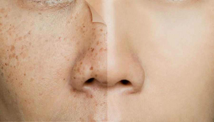 Rosto de pessoa com manchas escuras na pele
